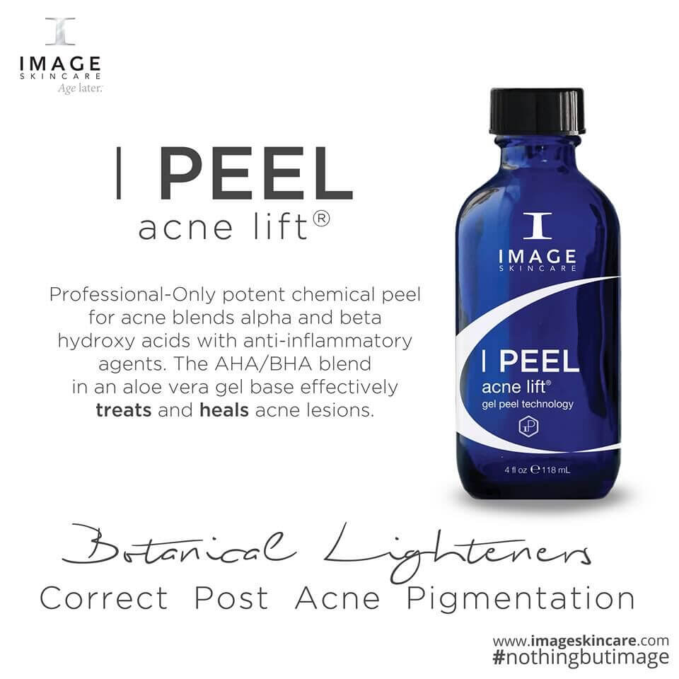 acne lift peel