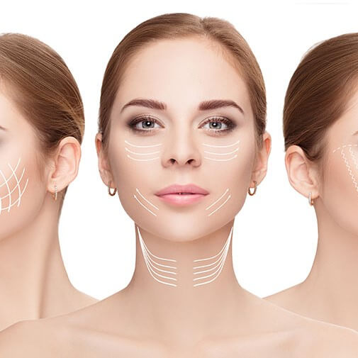 Middle Face Thread Lift